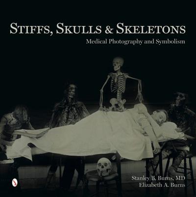 stiffs-skulls-skeletons